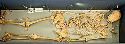 Lundin Links Skeleton